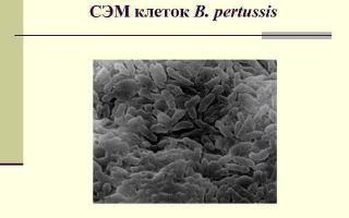 Бордетелла, bordetella (pertussis, spp): виды, свойства, патогенность, лечение
