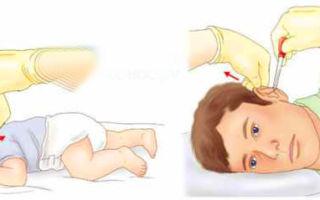 Перекись водорода в ухо и при лор-патологии: терапевт о правилах применения