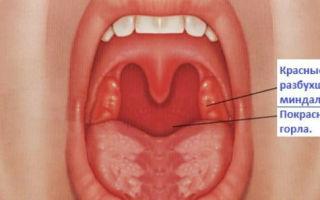 Кашель при ангине — что чем лечить?
