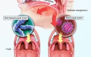 Ангина: обзор иммунолога о всех видах — развитие, симптомы и течение, лечение подробно