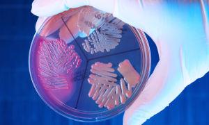 Энтеробактерии, enterobacter: виды, патогенность, свойства, лечение