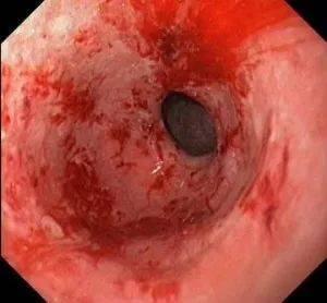 Жжение в горле: причины, симптомы, лечение