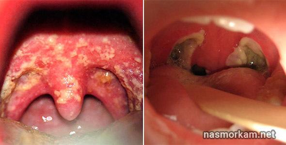 Гной в горле: причины, проявления, принципы лечения