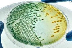 Цитробактер, citrobacter (freundii, spp): что это, виды, патогенность, лечение