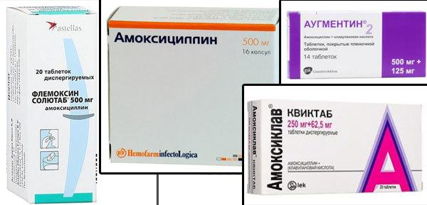 Увулит, воспаление язычка в горле: симптомы, лечение