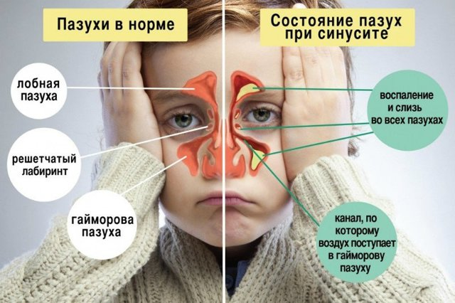 Иммунолог о лечении гайморита в домашних условиях: обзор всех основных методов