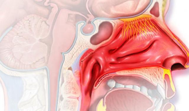 Ринофарингит: развитие, симптомы, диагноз, лечение