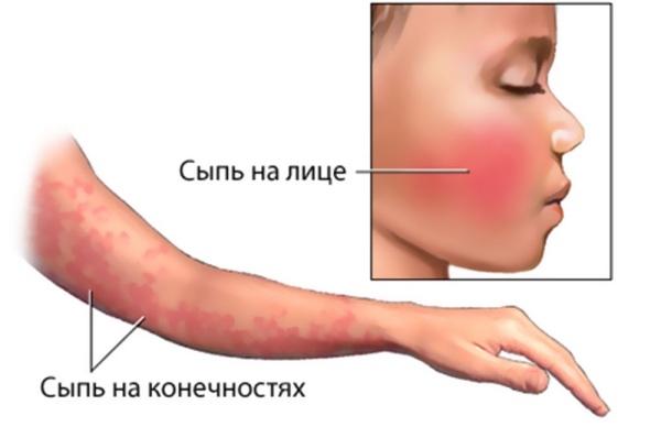 Парвовирус, парвовирусная инфекция у людей: возбудитель и патогенность, симптомы, диагностика, лечение