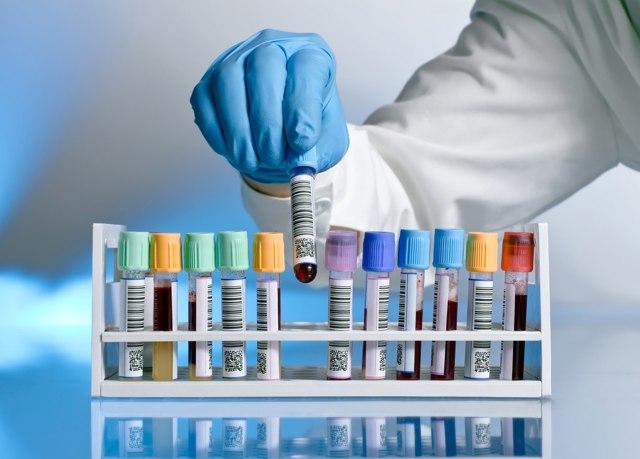 Лакунарная ангина: развитие и возбудители, симптомы, тактика лечения
