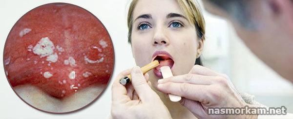 Язвы в горле: возникновение и причины, проявления, диагностика, принципы лечения