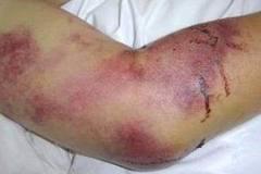 Крымская геморрагическая лихорадка (Крым-Конго): возбудитель, клиника, лечение
