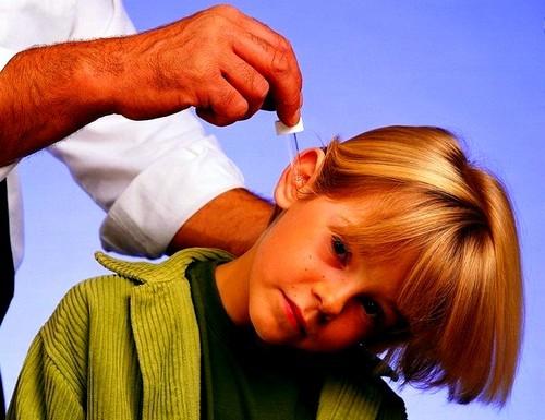 Лечение ушей в домашних условиях и народными средствами