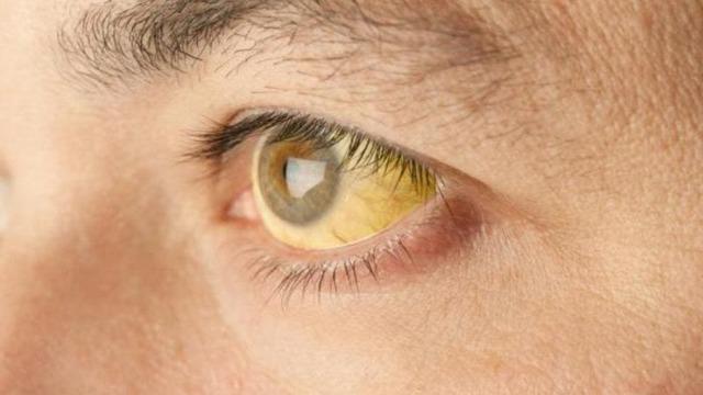 Лептоспироз, лептоспиры: заражение, симптомы, диагностика и лечение