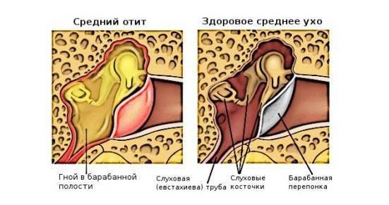 Увеличенные миндалины: инфекционист о причинах, проявлениях и лечении
