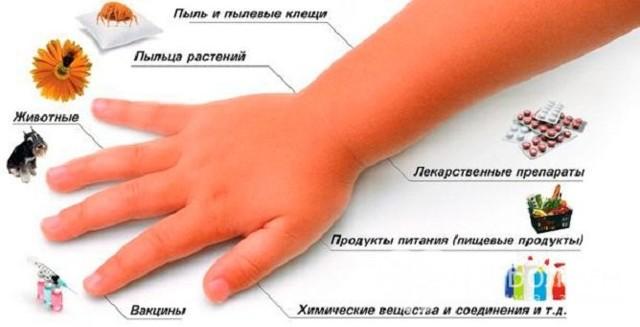 Опухло горло: этиология и заболевания-причины, течение, диагноз, принципы лечения