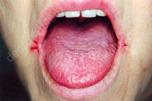 Молочница во рту: как возникает, симптомы, диагностика, лечение