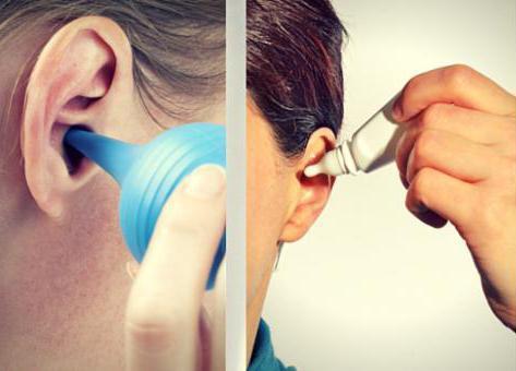 Заложило ухо: механизм развития, все причины и их лечение