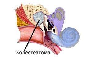 Холестеатома: что это, развитие, проявления, диагностика, лечение