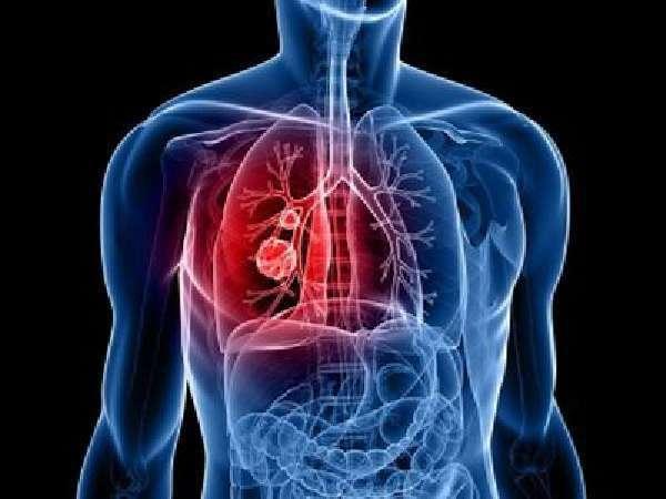 Кровохарканье: критерии, причины и развитие, симптоматика, диагностика, лечение