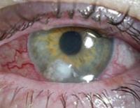 pseudomonas (aerugenosa, spp), псевдомонада: что это, патогенность, лечение