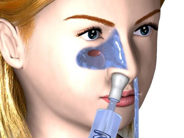 Процедура Кукушка (промывание носа по Проетцу методом перемещения)
