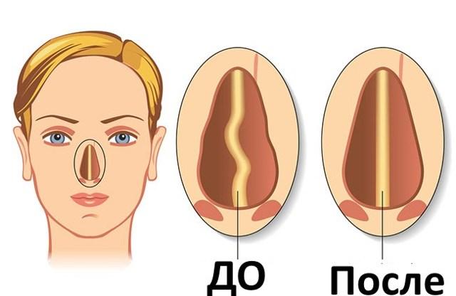Септопластика до и после - восстановление, не дышит нос, осложнения, отек, как надо правильно промывать