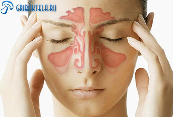 Грибок в носу: заражение, признаки, формы, диагностика, лечение