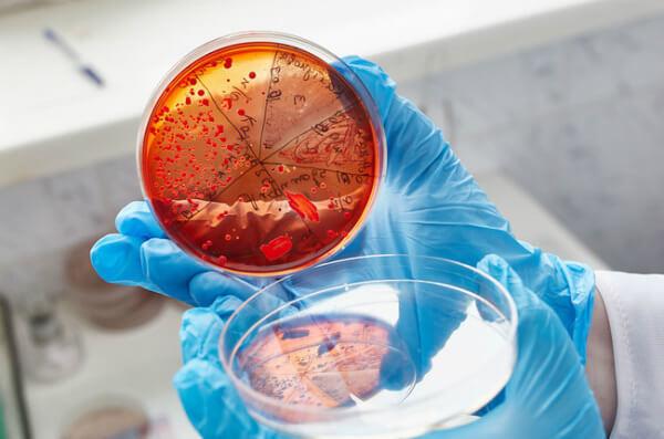 eubacterium spp, эубактерии: что это в мазке, свойства, патогенность, лечение