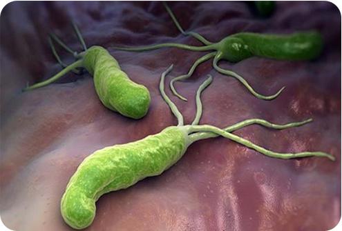 Кампилобактериоз, кампилобактерии: что это, симптомы, диагностика, лечение