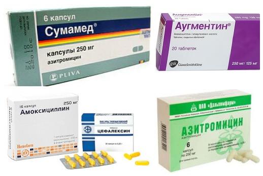 streptococcus pyogenes (пиогенный стрептококк): особенности, патогенность, лечение