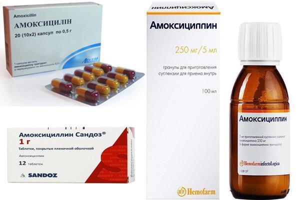 Двухсторонний полипозный риносинусит