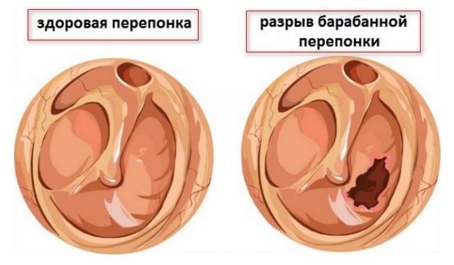 Повреждения (перформация) барабанной перепонки: развитие, симптомы и диагностика, терапия