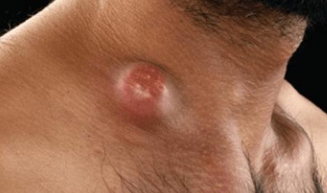Риккетсия, риккетсиоз: свойства возбудителя, симптомы, лечение