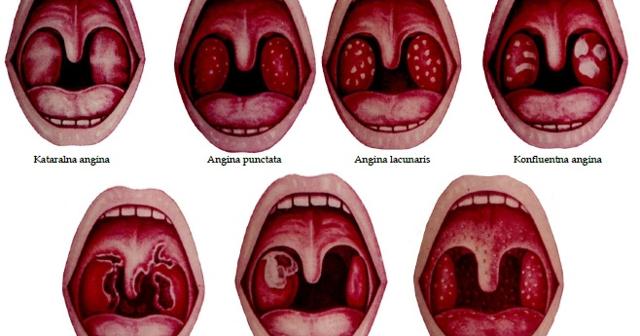 Ангина: обзор иммунолога о всех видах - развитие, симптомы и течение, лечение подробно