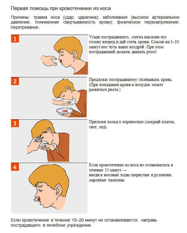 Кровь из носа: подробный разбор причин от терапевта, как остановить