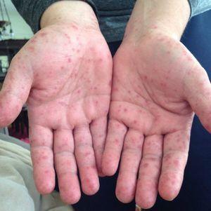 Вирус Коксаки: симптомы, лечение, у детей и взрослых