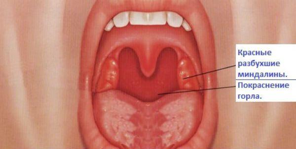 Герпес в горле: возбудитель, как выглядит, принципы лечения