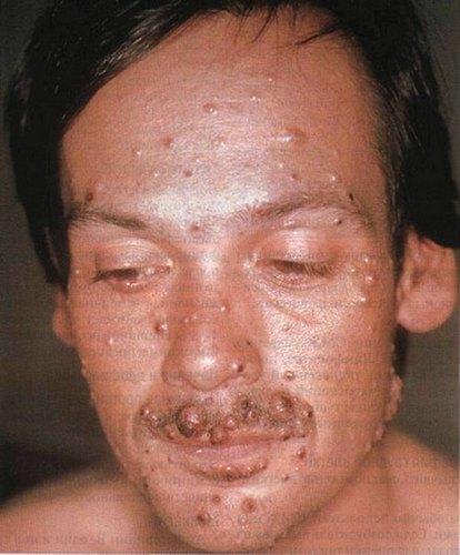 Криптококкоз: возбудитель (cryptococcus), симптомы, диагностика, терапия