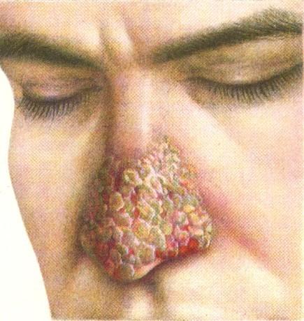 Аспергиллез: что это, симптомы, диагностика, лечение
