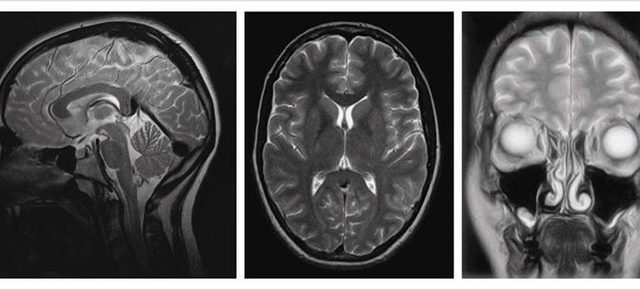 Вестибулопатия: понятие, как развивается, симптомы, диагностика, лечение