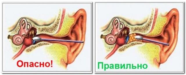 Чистка ушей: физиолог о правилах и рекомендуемых средствах