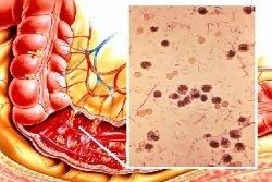 Шигеллез, шигелла: развитие, симптомы, диагностика, лечение