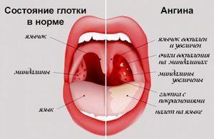 Гнойная ангина: особенности, симптомы, иммунолог о лечении