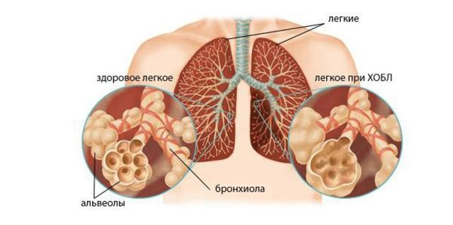 Пневмосклероз: как развивается, симптоматика, диагностика, лечение
