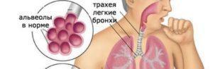 Микоплазма пневмония (mycoplasma pneumoniae): что это, симптомы, лечение