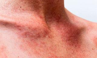 Инфекционный мононуклеоз: возбудитель, развитие, симптомы, лечение