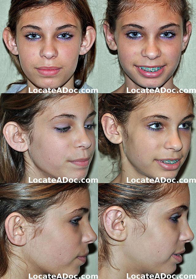 Отопластика (пластика ушей): как проходит операция, методы, показания, реабилитация и осложнения