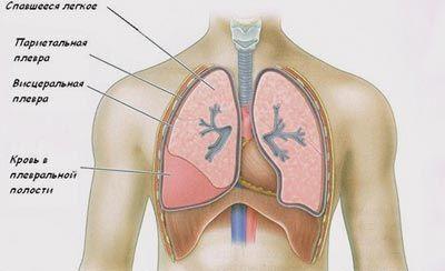 Плеврит: как развивается, формы и симптомы, диагностика, лечение