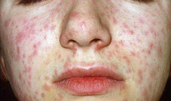 Инфекционист о кори: возбудитель и заражение, симптомы и стадии, диагностика, лечение, профилактика