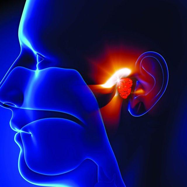 Стапедопластика - операция при отосклерозе уха